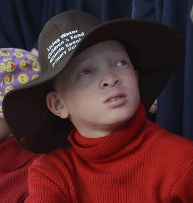 Photo of a child at the Mitindo school wearing Living Water Children's Fund sponsored protective clothing designed for children with Albinism.